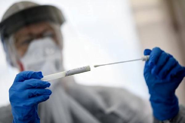Salud reporta tres nuevos fallecimientos y 202 casos positivos