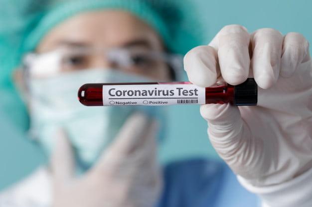 Salud reporta 3 fallecidos y 197 casos positivos de Covid-19